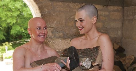 Brave bald women strip off for calendar in support of