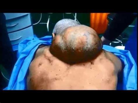 regional technique for big back lipoma removal - YouTube