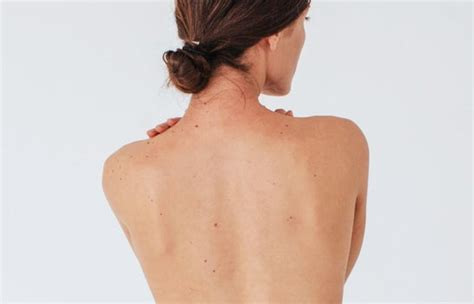 Lipoma Removal | Worth It? Reviews, Cost, Pictures - RealSelf