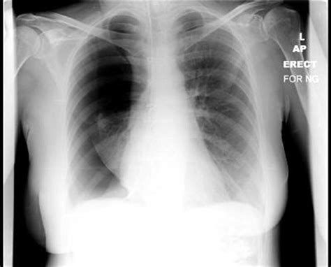 A rare complication of nasogastric tube insertion   BMJ